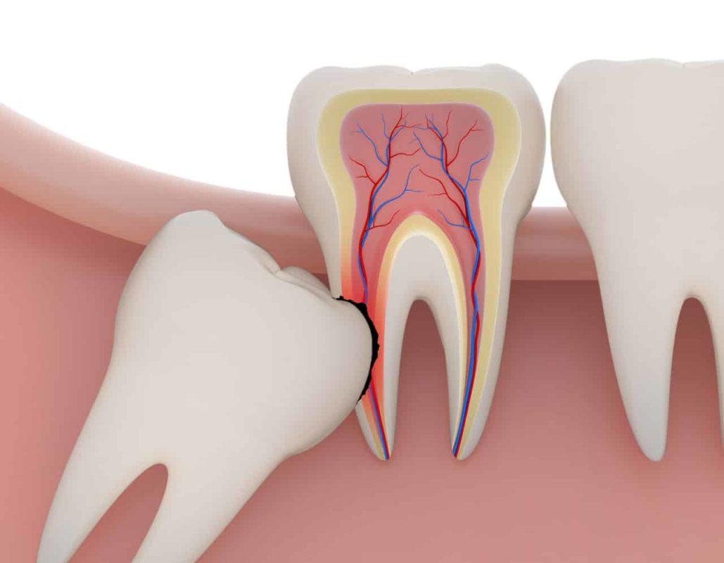 Dente do Siso: meu dente do juízo nasceu, e agora?